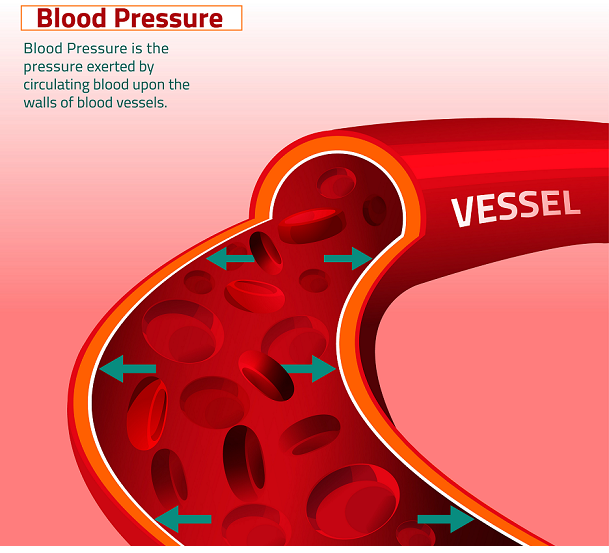 blood pressure diagrams can convey more information to a patient than text alone